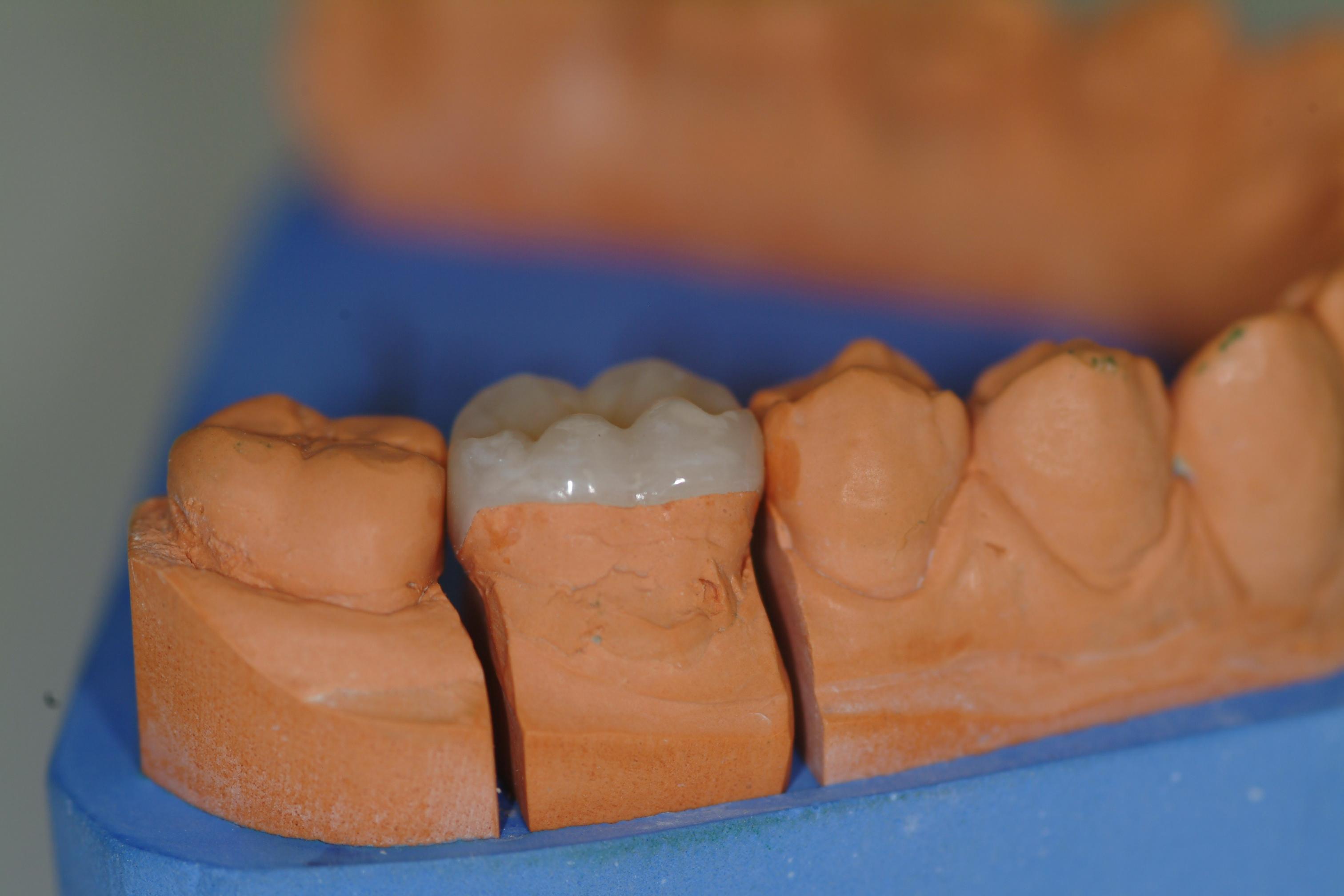 Intarsio Denti