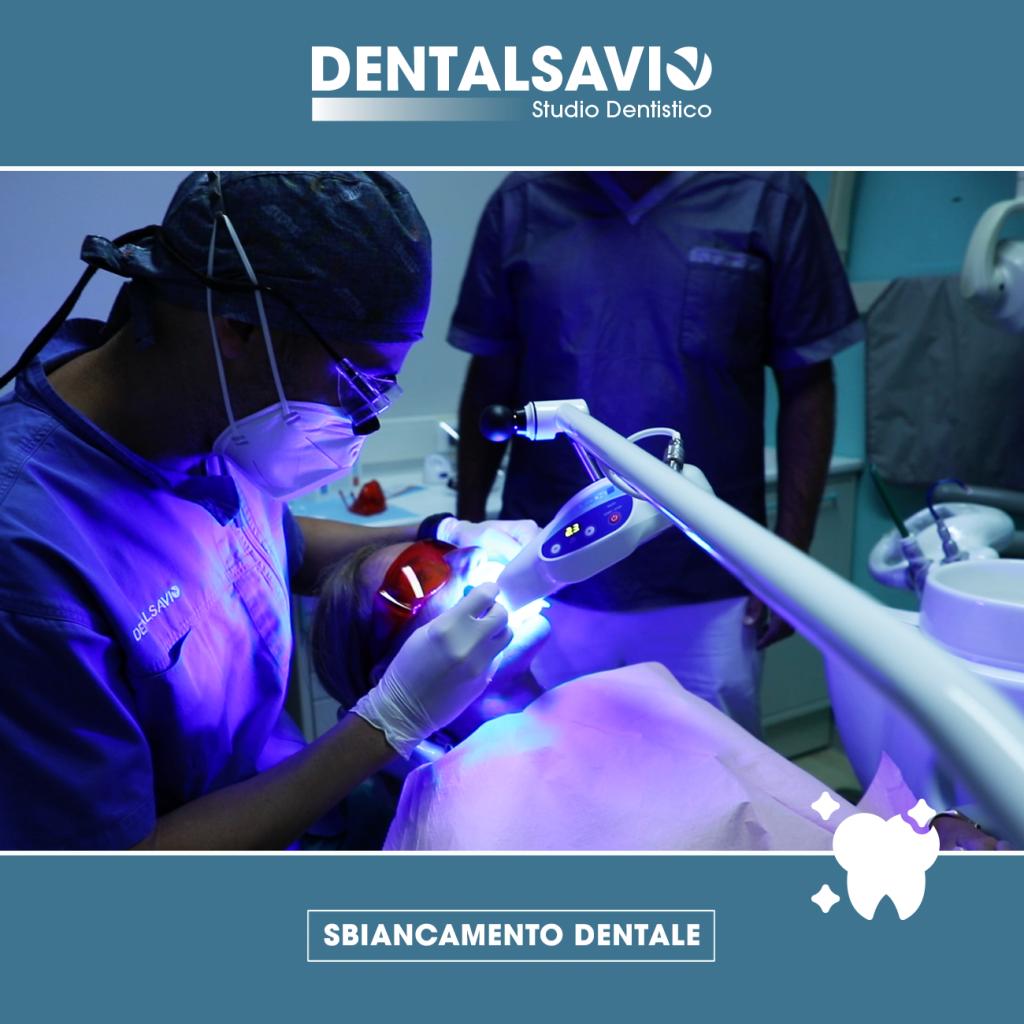 sbiancamento dentale dentalsavio