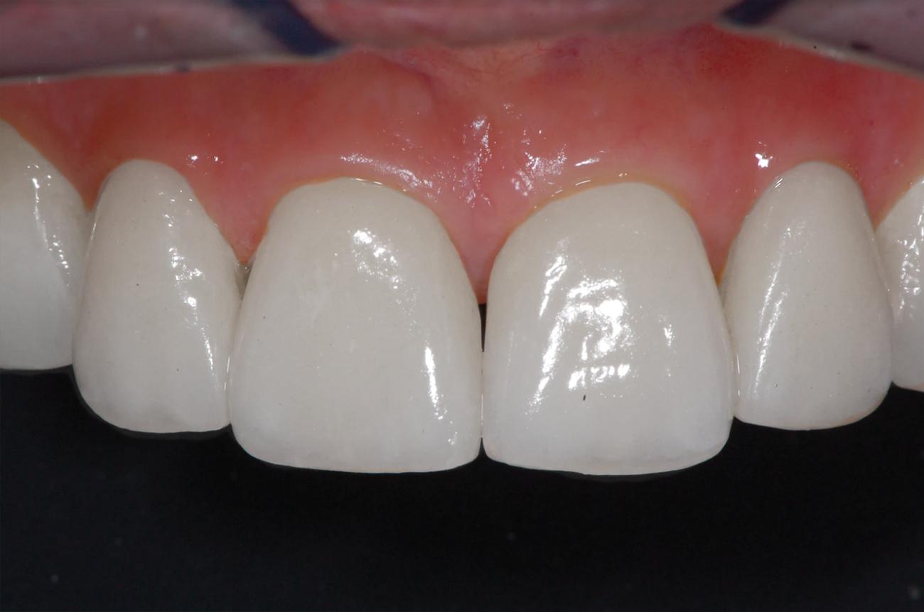 denti post operazione