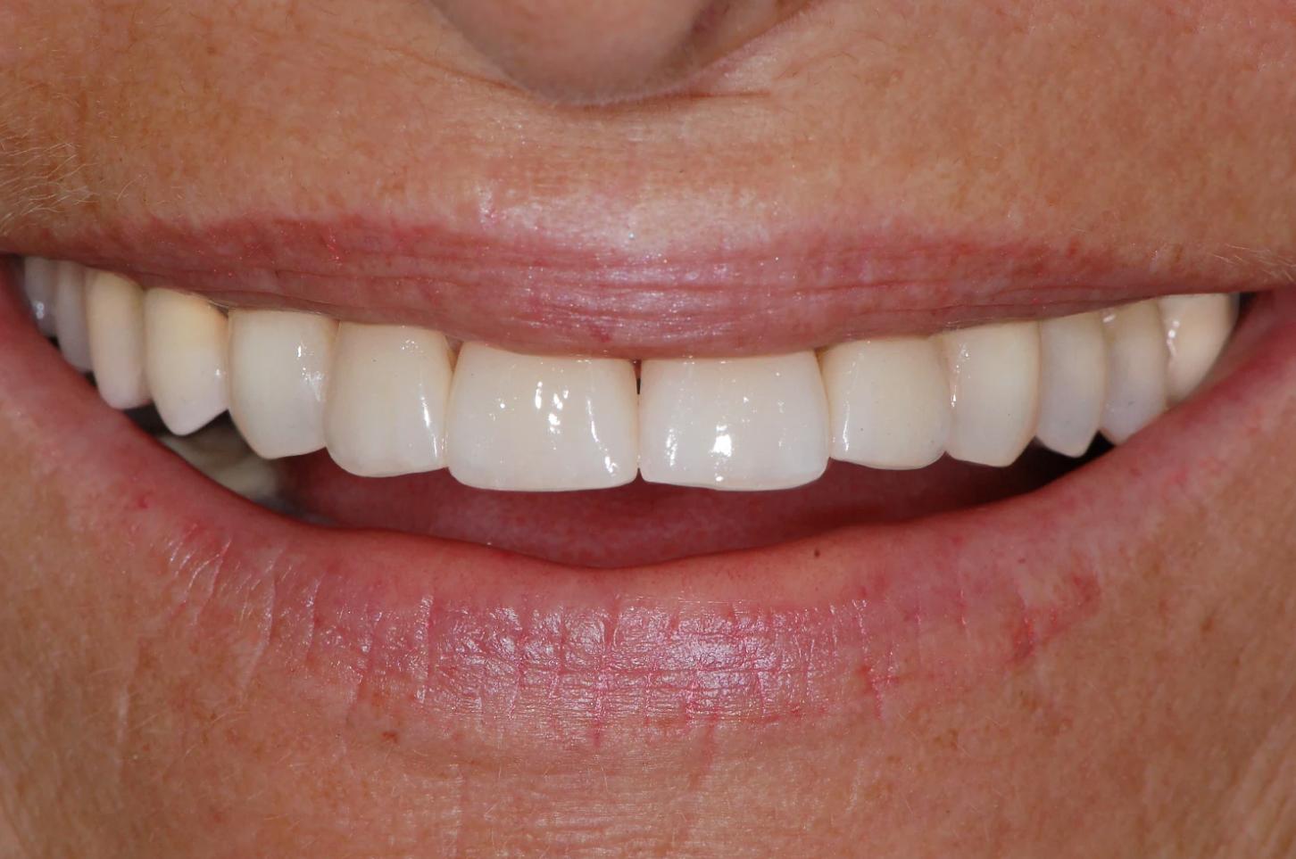 dopo operazione dentale