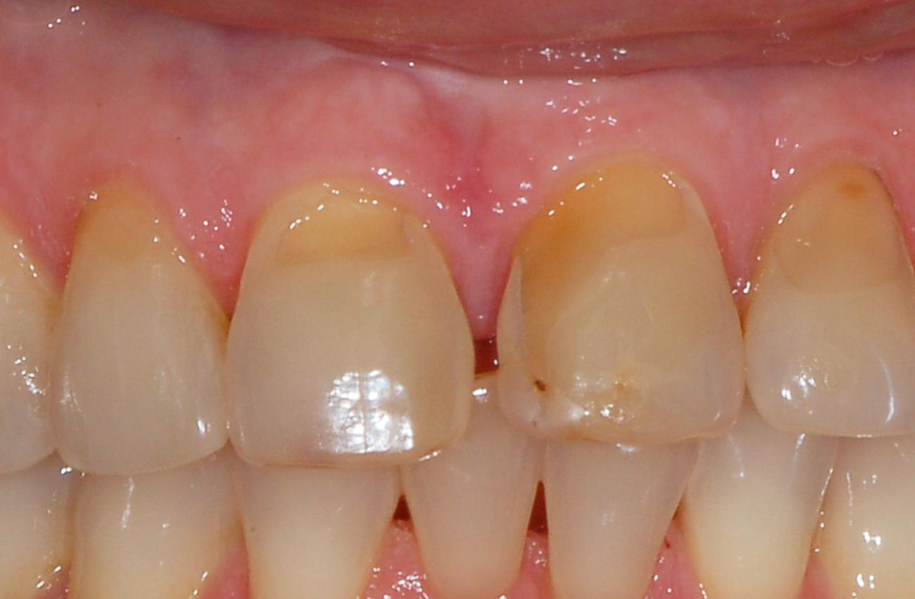 denti pre operazione