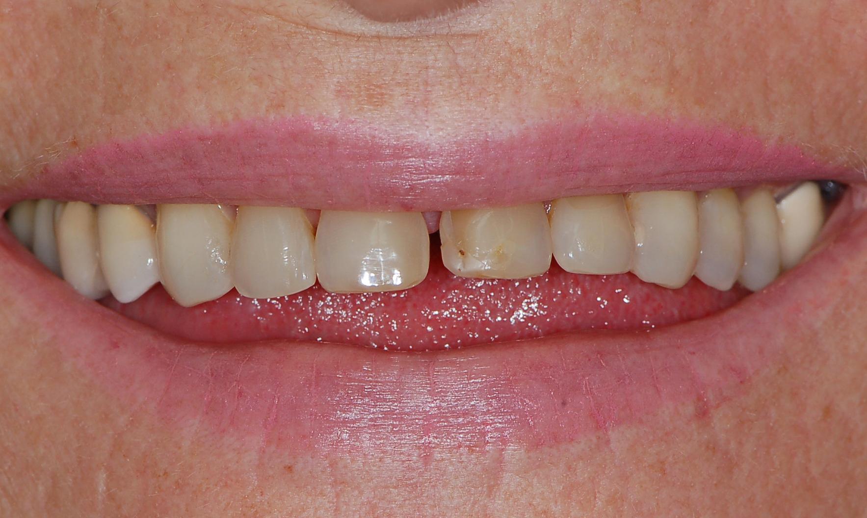 prima operazione dentale