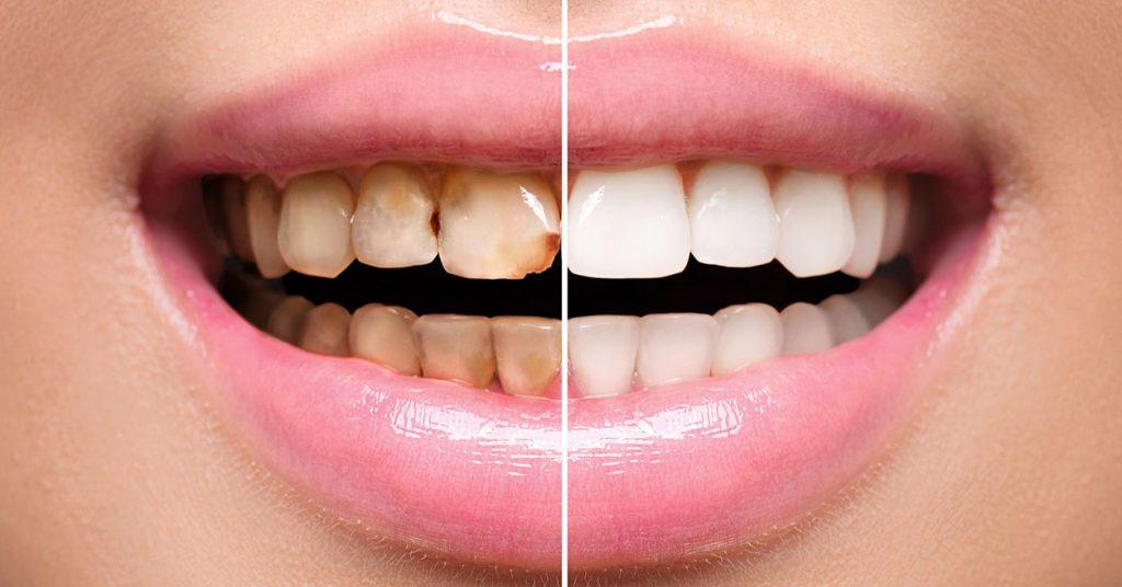 prima e dopo faccette dentali