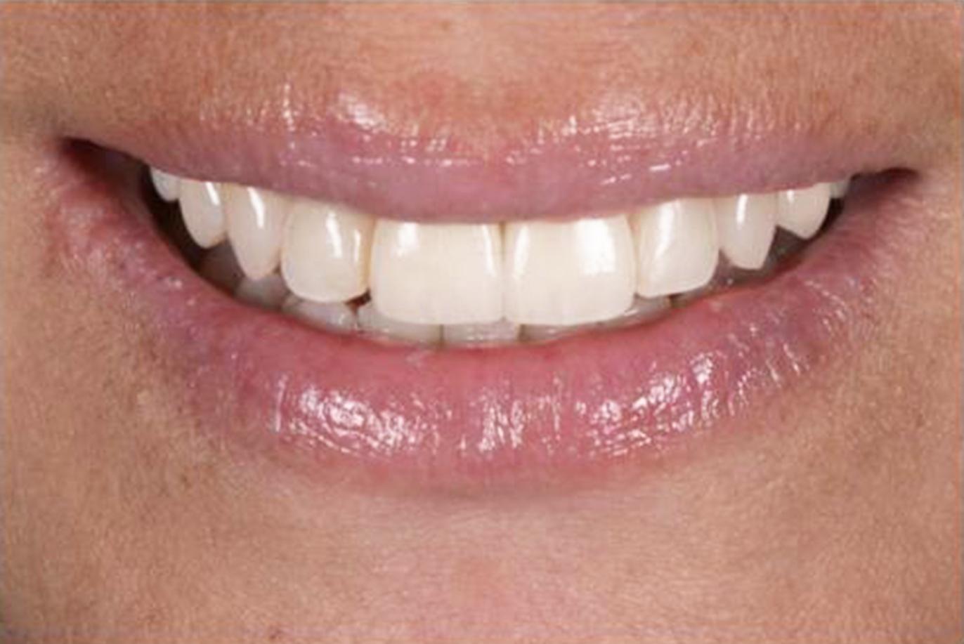 denti dopo