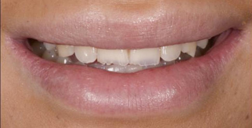 denti prima